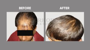 IMAGE-OF-HAIR-LOSSt-BEFORE-AFTER-1
