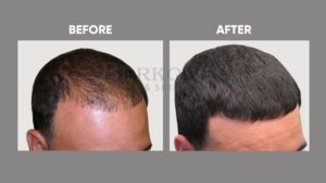 IMAGE-OF-HAIR-LOSSt-BEFORE-AFTER-2