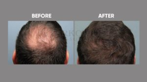 IMAGE-OF-HAIR-LOSSt-BEFORE-AFTER-3