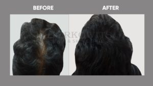 IMAGE-OF-HAIR-LOSSt-BEFORE-AFTER-5