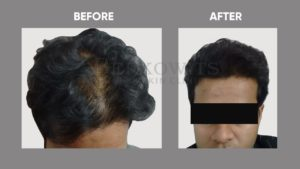 IMAGE-OF-HAIR-LOSSt-BEFORE-AFTER-6
