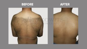IMAGE-OF-laser-hair-reduction-BEFORE-AFTER-1