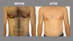 Full Body Laser Hair Removal Services Get Rid Of Unwanted Hairs