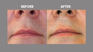 IMAGE-OF-laser-hair-reduction-BEFORE-AFTER-3