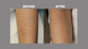 IMAGE-OF-laser-hair-reduction-BEFORE-AFTER-5