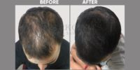 AMT before & after image 3