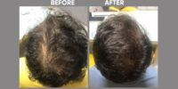 AMT before & after image 4