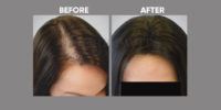 FEMALE HAIR TRANSPLANT 6