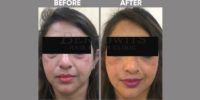FILLER ( CONCEALING EYE BAGS WITH FILLER )before & after image 2