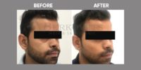 FILLER (CORRECTION OF MID FACE WITH FILLER) before & after image 1