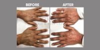 FILLER ( HAND REJUVENATION BY FILLER) before & after image 4