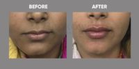 FILLER (LIP FILLER ) before & after image 3