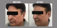 FILLER ( LIQUID FACELIFT WITH FILLER ) before & after image 6