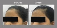 FILLER ( TEAR TROUGH CORRECTION BY FILLER ) before & after image 5