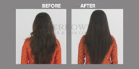 HAIR REJUVENATION before and after 14