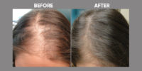 Hair Loss in Women before and after 1