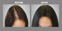 Hair Loss in Women before and after 3