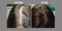 Hair Loss in Women before and after 4