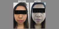 IBV GLUTHATHIONE before & after image 2