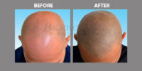 Scalp Micro Pigmentation before & after 1