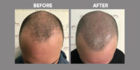 Scalp Micro Pigmentation before & after 2