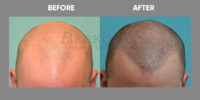 Scalp Micro Pigmentation before & after 3