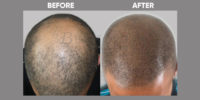 Scalp Micro Pigmentation before & after 5