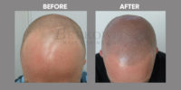 Scalp Micro Pigmentation before & after 6