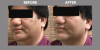 THREADLIFT (lipstick with thread lift double chin) before & after image 4