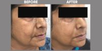 THREADLIFT lower part of face before & after image 1