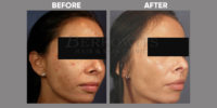 pigmentation and skin brightening before and after 4