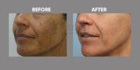 pigmentation and skin brightening before and after 5