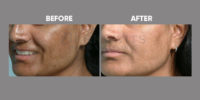 pigmentation and skin brightening before and after 6