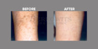 pigmentation and skin brightening before and after 7
